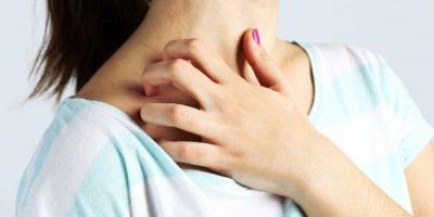 Những bệnh ngoài da dễ mắc phải khi thời tiết thay đổi