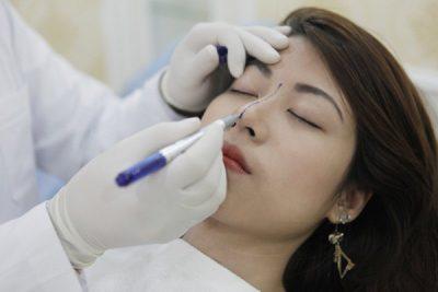 Chia sẻ kinh nghiệm xương máu trước khi phẫu thuật nâng mũi