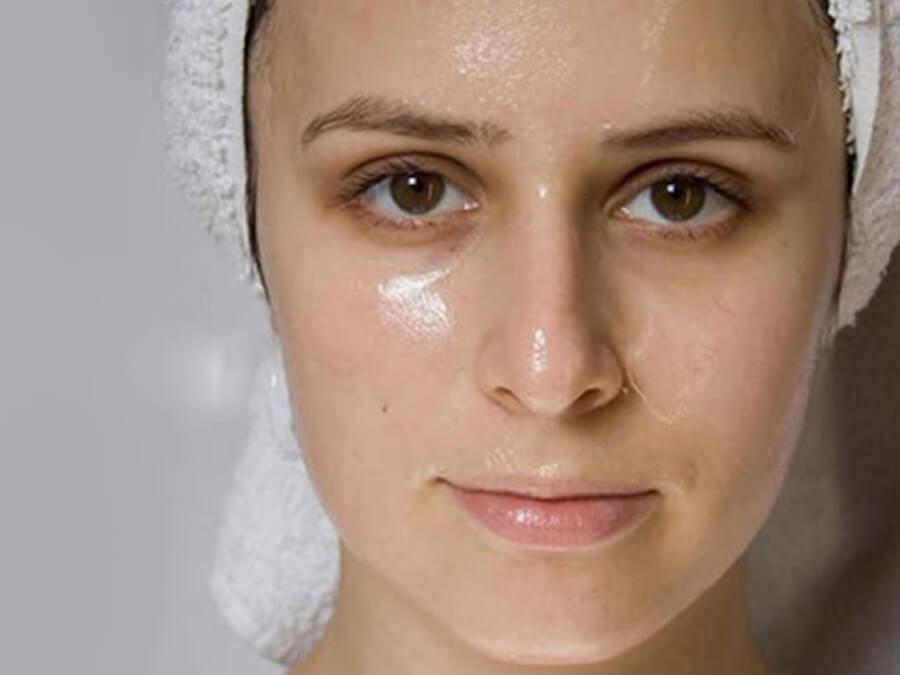 làn da dầu dễ bị mụn