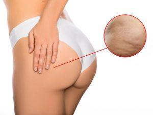 Cách trị thâm mông