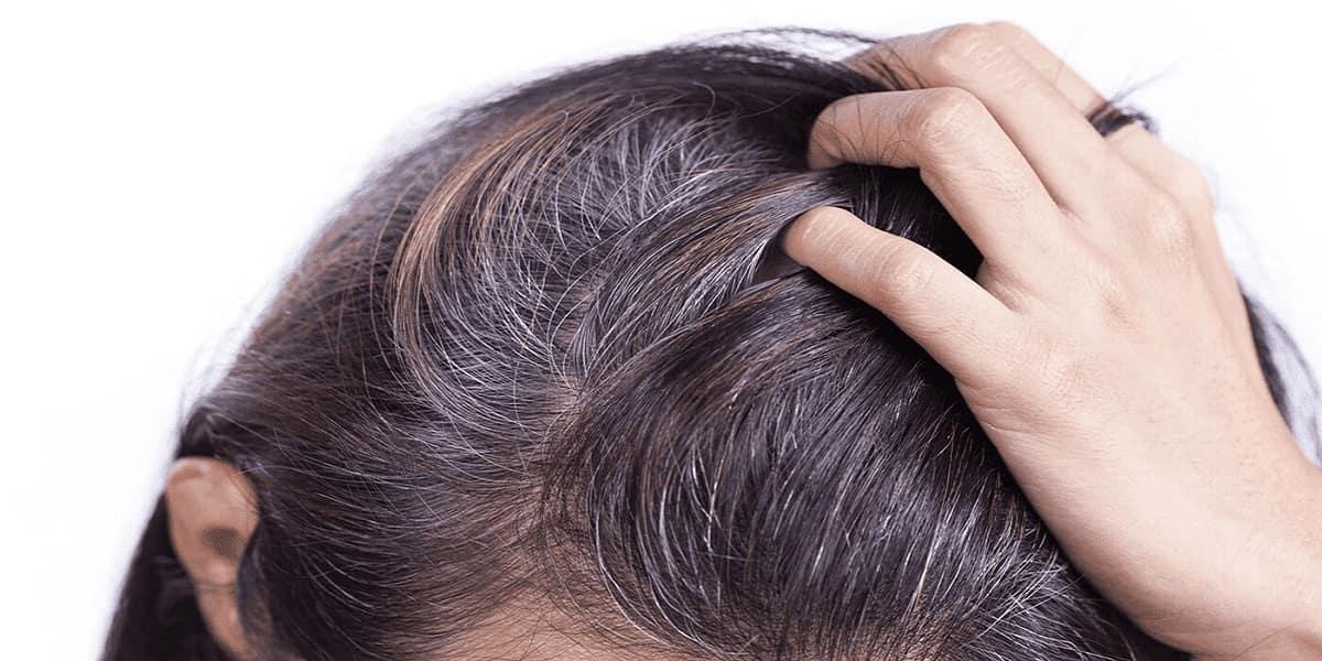 tóc bạc sớm