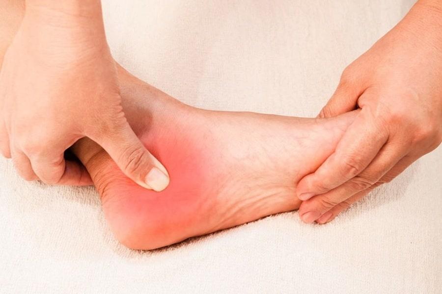nguyên nhân đau gót chân